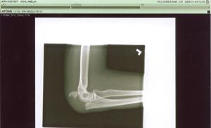 Broken_elbow_30001